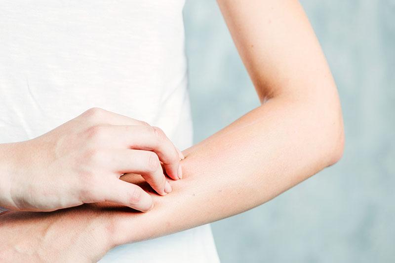 Vegan skincare tips for the Spring allergy season: eczema