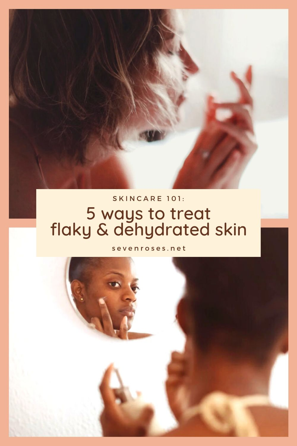 Skincare 101: 5 ways to treat flaky & dehydrated skin